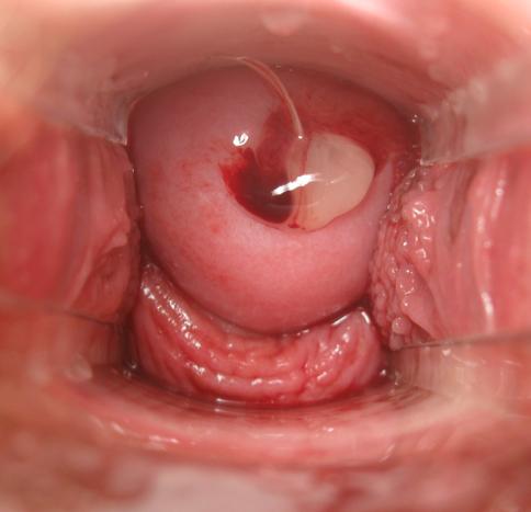 cervix fertil